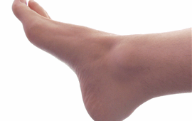 Home Doctor Service For Sprains in Costa del Sol